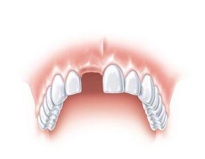 Ein Zahn fehlt 1
