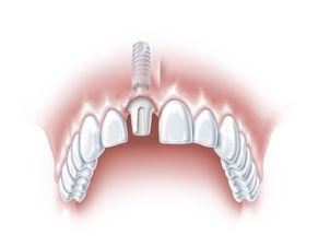 Ein Zahn fehlt 2
