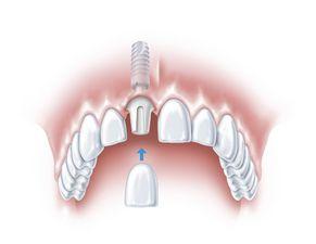 Ein Zahn fehlt 3