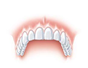 Ein Zahn fehlt 4
